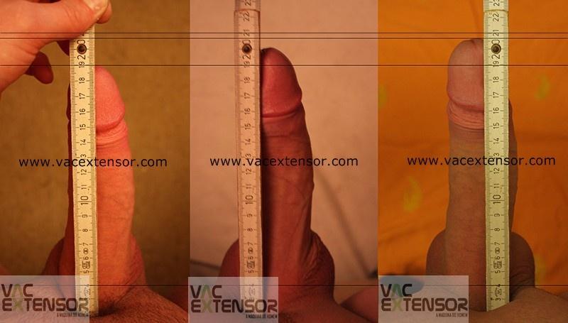 Você gostaria de aumentar o seu pênis?
