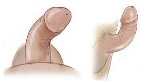 Terapia de Tração Peniana para Tratamento de Doença de Peyronie