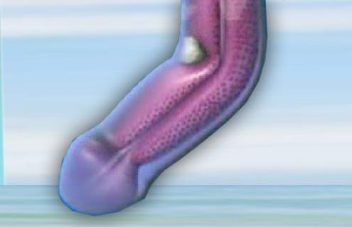 Vac extensor é indicado como tratamento não invasivo para curvatura peniana