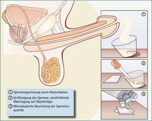 Como e feito e para que serve um Espermograma?