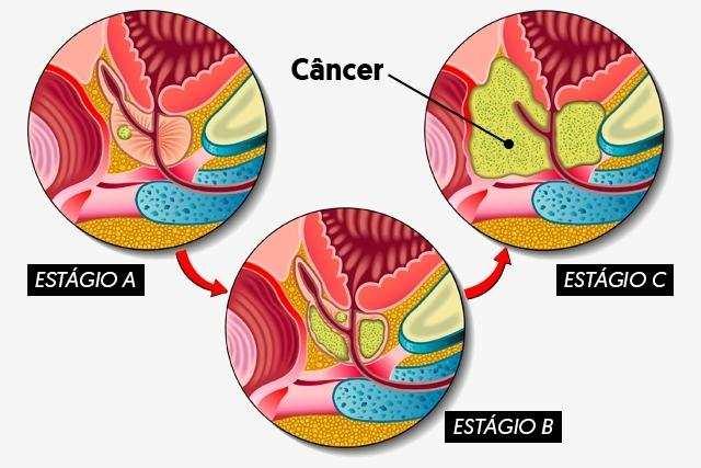 câncer de próstata estágios