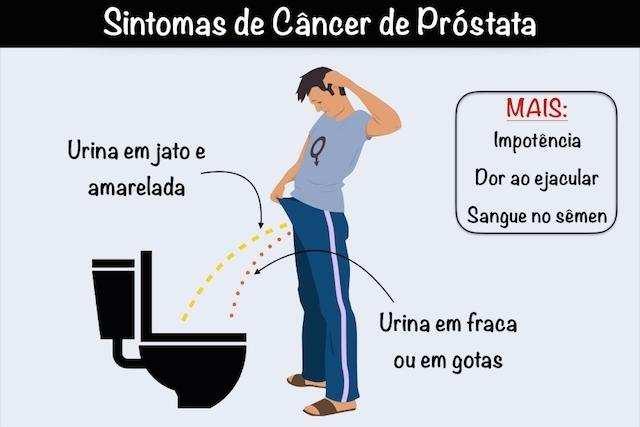 Sinais de que pode ser câncer de próstata