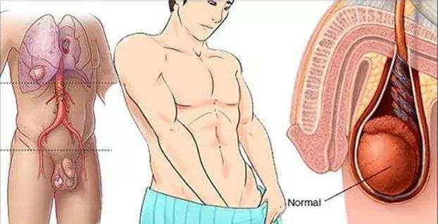 Cuidado com o Câncer de testículo