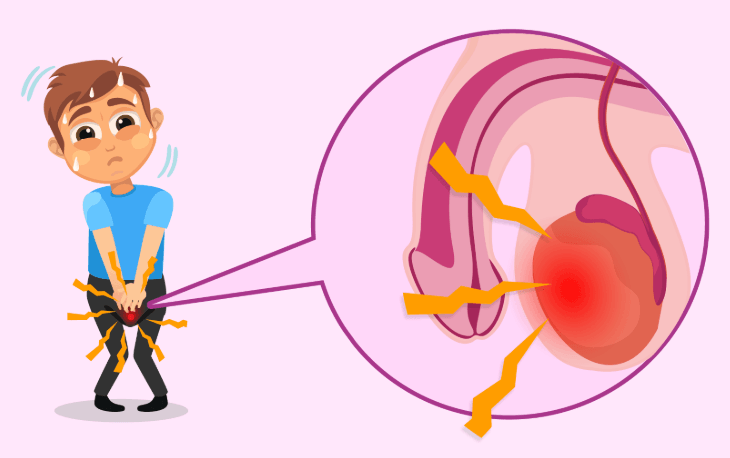 Sangue no esperma: O que pode ser e como tratar!